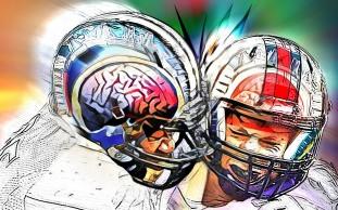 Concussion2V2FLPris